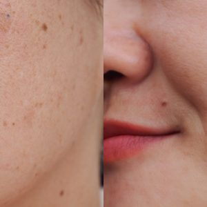 Cortisol: qué es y cómo afecta a la piel si se produce en exceso
